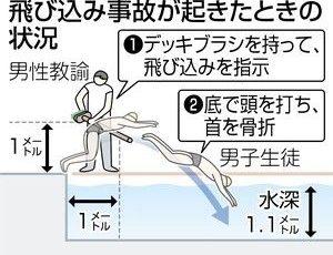 【和解】水泳授業中に中学生が首の骨折り脊髄損傷→名古屋市が慰謝料等2億円支払いへ
